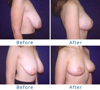 The Three Stages of Breast Sagging