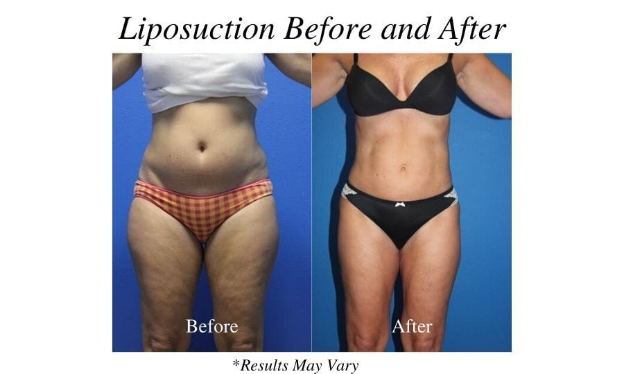 Can the UltraShape® Power Rival Liposuction?