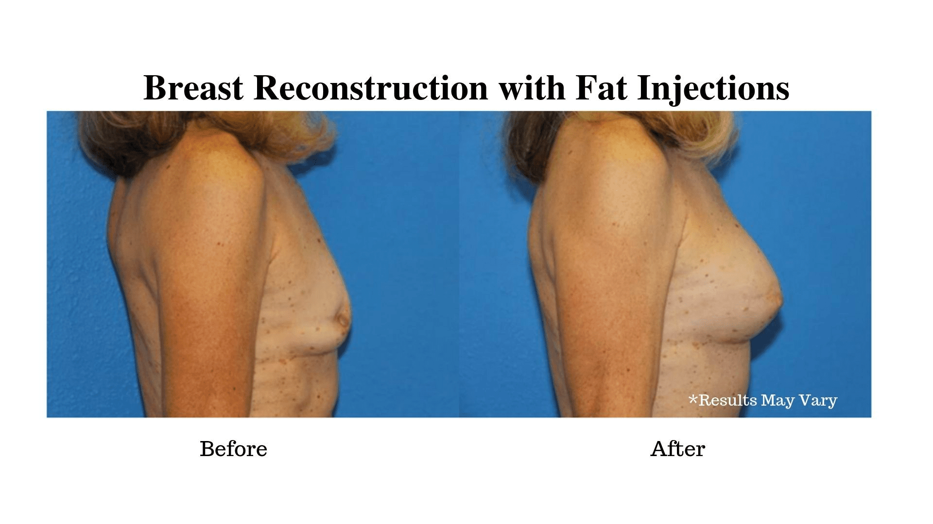What Are the Benefits of Using Fat Injections for Breast Reconstruction?