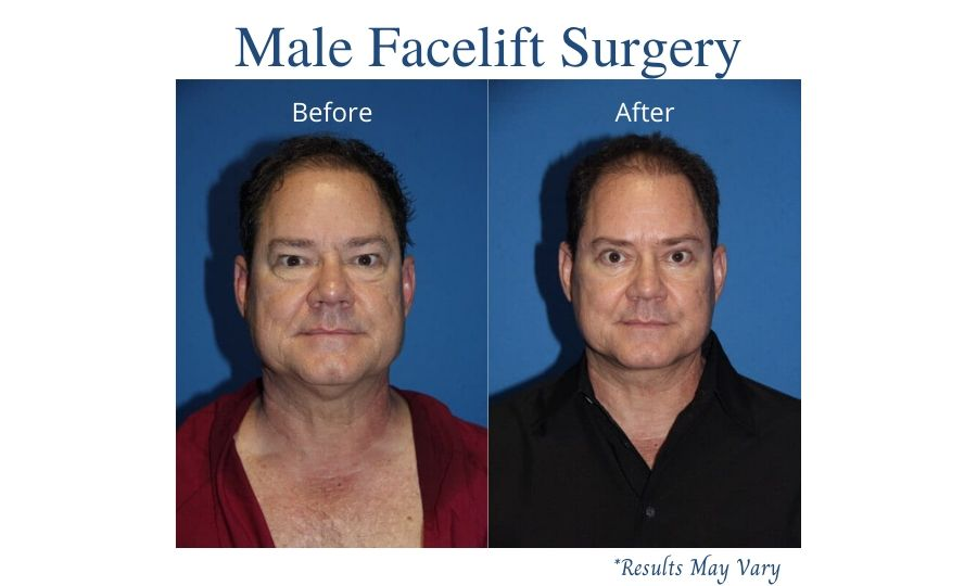 How Do Male Facelifts Differ From Female Facelifts?